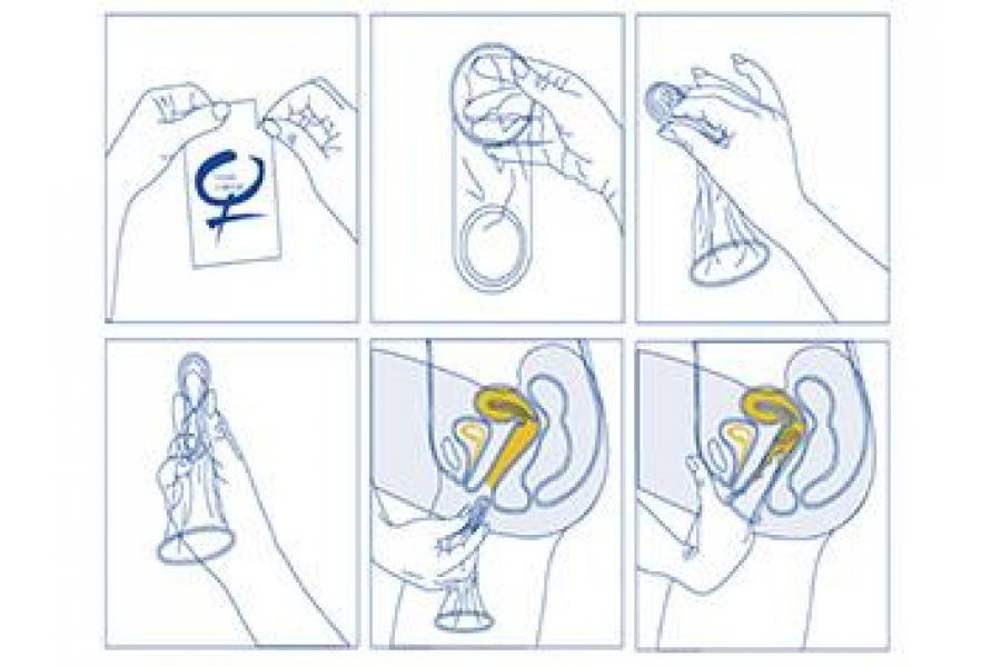 Cómo se usa el condón femenino: paso a paso