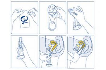 Cómo ponerse un condón femenino